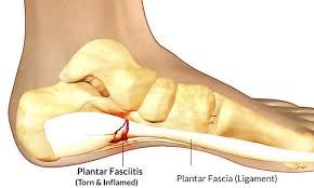 Cciatic Nerve Pain Treatment